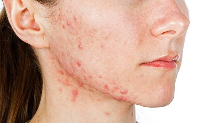 acne on a woman face